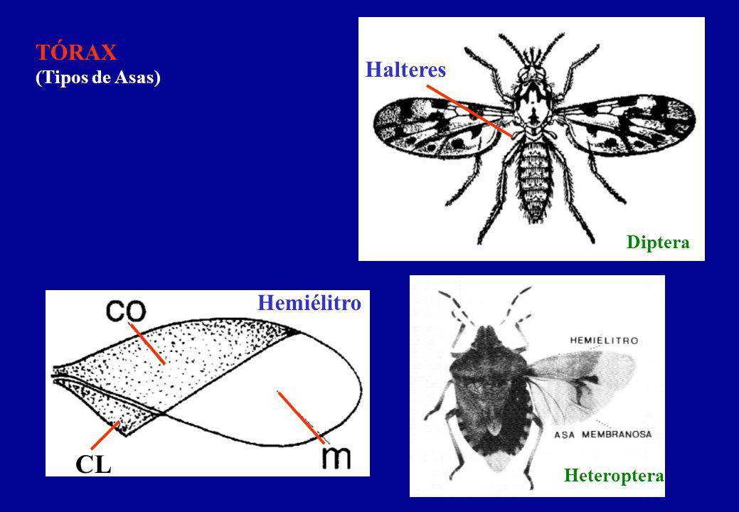 TÓRAX (Tipos de Asas) Halteres Diptera Hemiélitro CL Heteroptera