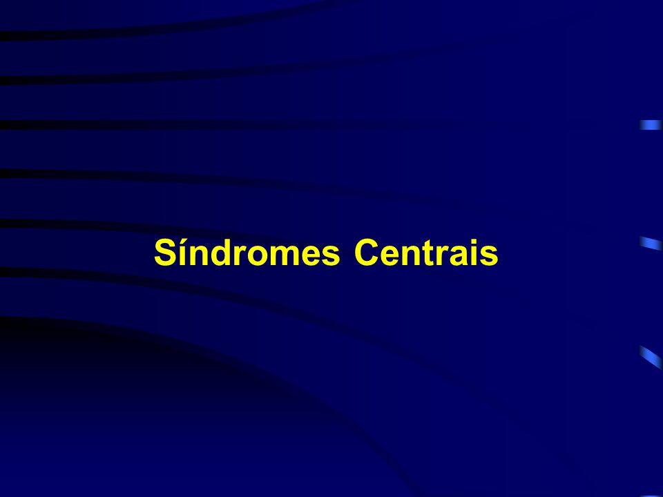 Síndromes Centrais