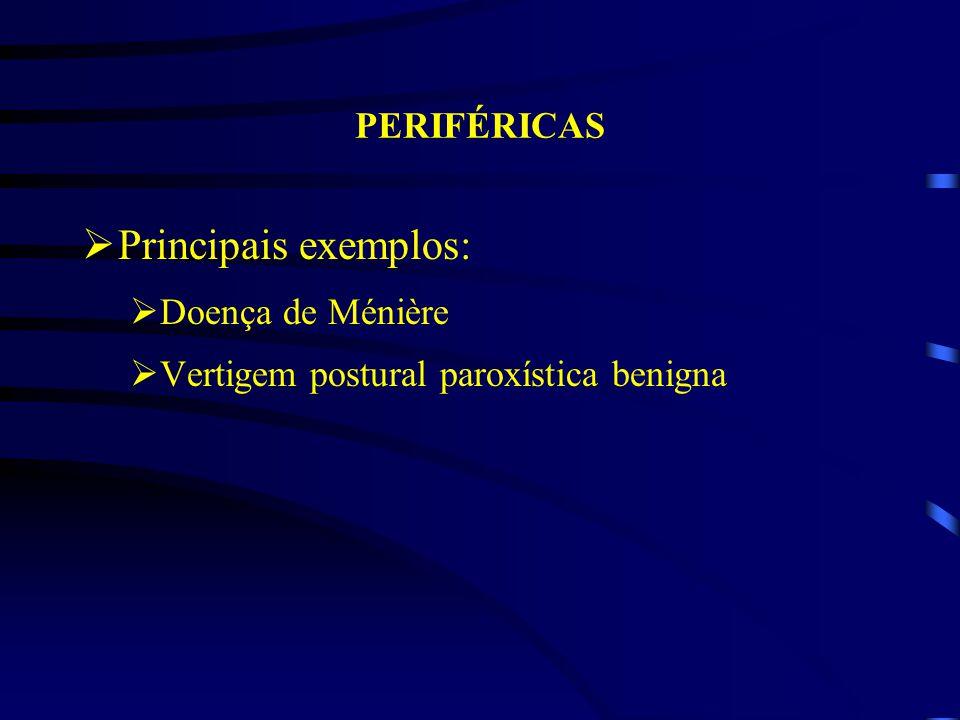 Principais exemplos: PERIFÉRICAS Doença de Ménière