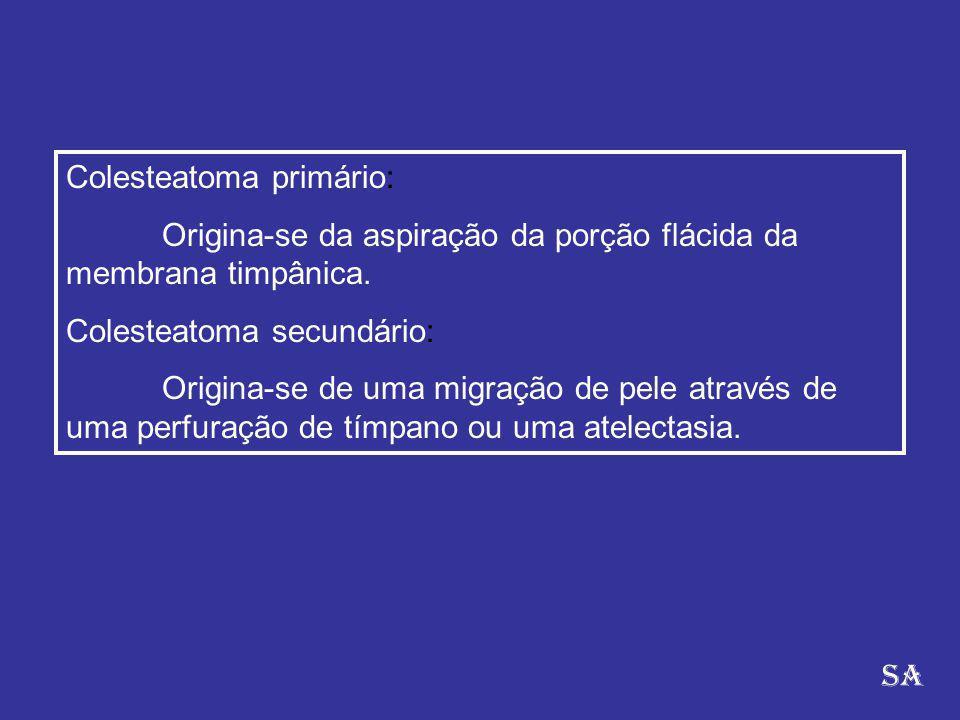 Colesteatoma primário:
