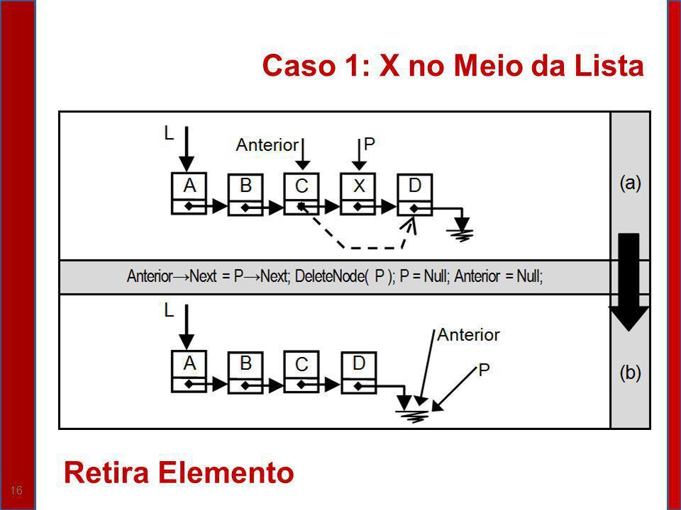 Caso 1: X no Meio da Lista Retira Elemento
