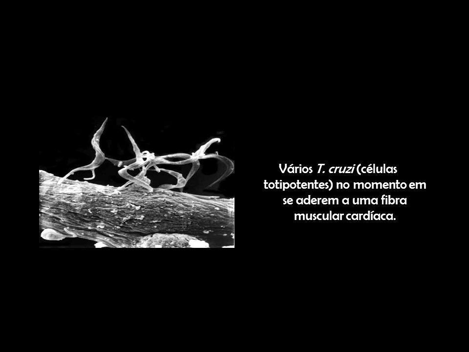 Vários T. cruzi (células totipotentes) no momento em se aderem a uma fibra muscular cardíaca.