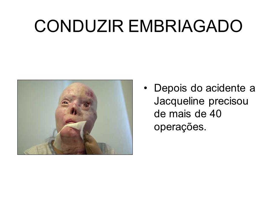 CONDUZIR EMBRIAGADO Depois do acidente a Jacqueline precisou de mais de 40 operações.