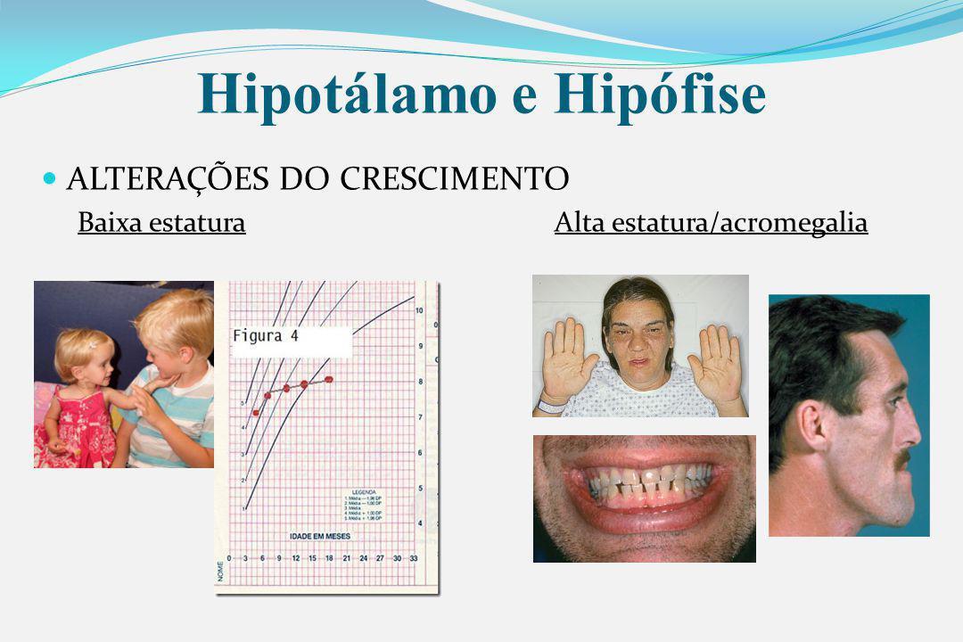 Hipotálamo e Hipófise ALTERAÇÕES DO CRESCIMENTO