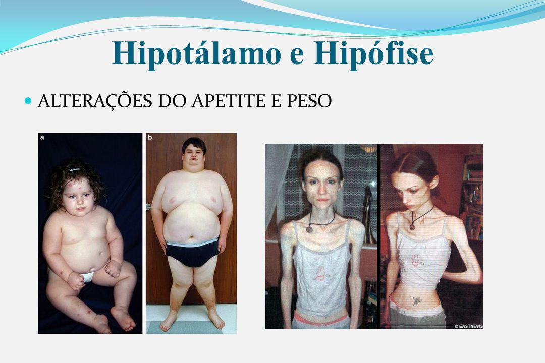 Hipotálamo e Hipófise ALTERAÇÕES DO APETITE E PESO