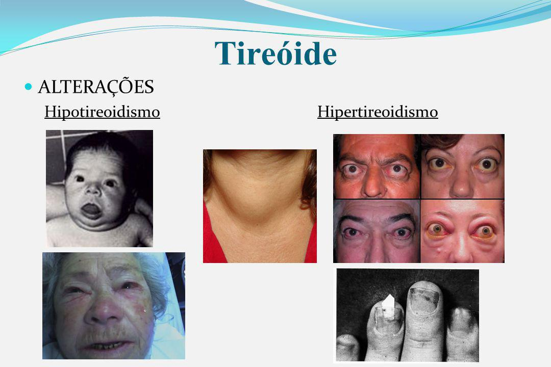 Tireóide ALTERAÇÕES Hipotireoidismo Hipertireoidismo