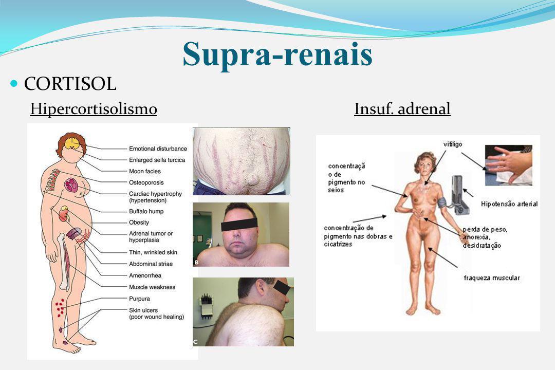 Supra-renais CORTISOL Hipercortisolismo Insuf. adrenal
