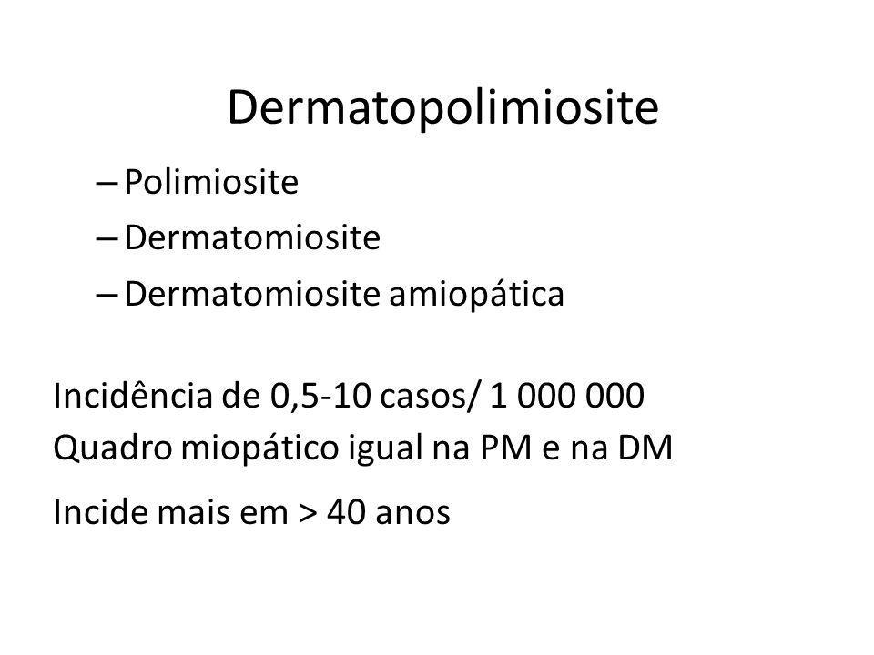 Dermatopolimiosite Polimiosite Dermatomiosite