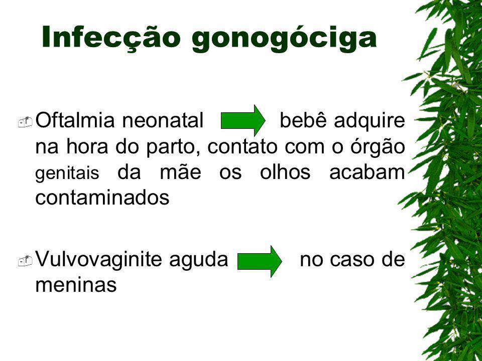 Infecção gonogóciga Oftalmia neonatal bebê adquire na hora do parto, contato com o órgão genitais da mãe os olhos acabam contaminados.