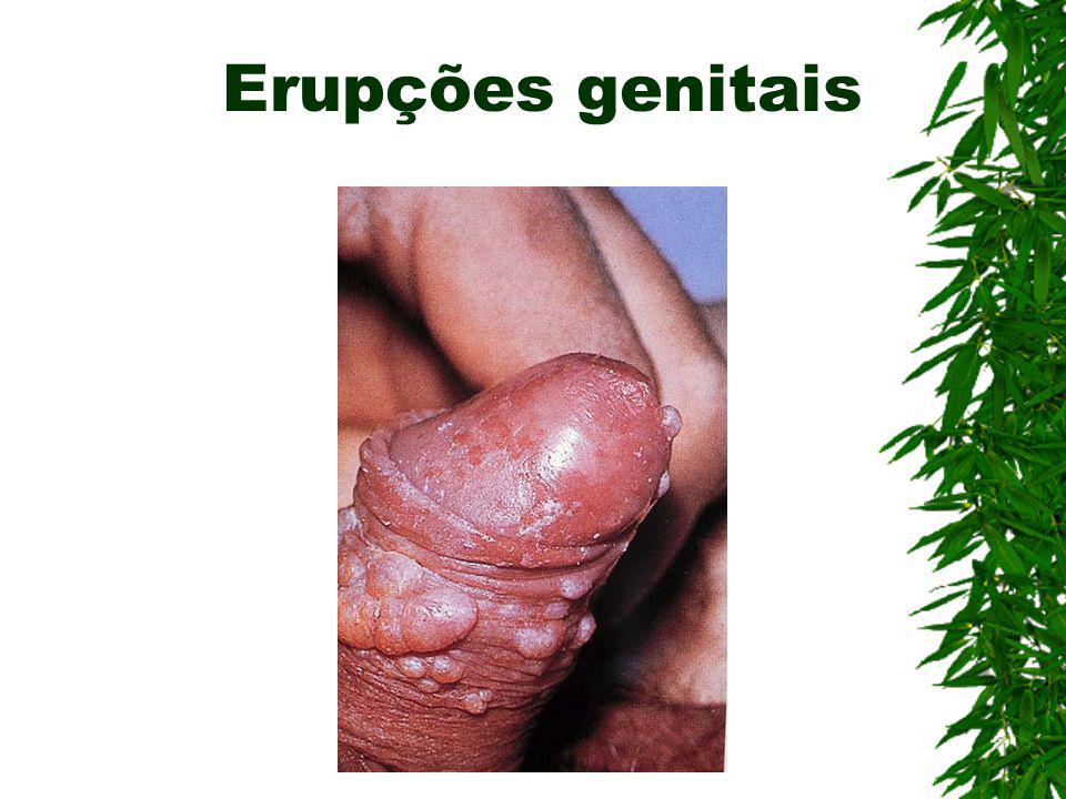 Erupções genitais