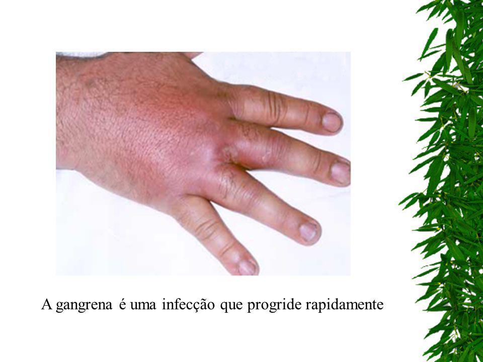 A gangrena é uma infecção que progride rapidamente