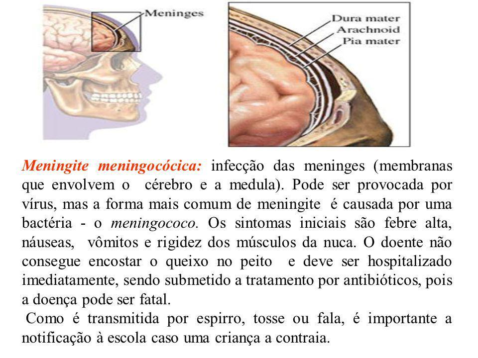 Meningite meningocócica: infecção das meninges (membranas que envolvem o cérebro e a medula). Pode ser provocada por vírus, mas a forma mais comum de meningite é causada por uma bactéria - o meningococo. Os sintomas iniciais são febre alta, náuseas, vômitos e rigidez dos músculos da nuca. O doente não consegue encostar o queixo no peito e deve ser hospitalizado imediatamente, sendo submetido a tratamento por antibióticos, pois a doença pode ser fatal.