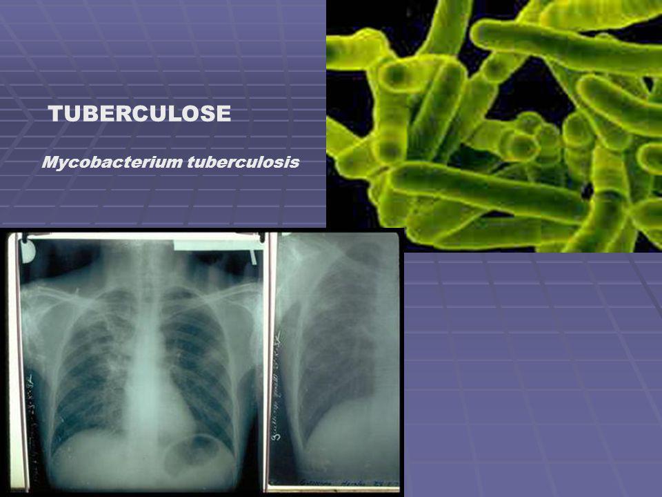 TUBERCULOSE Mycobacterium tuberculosis