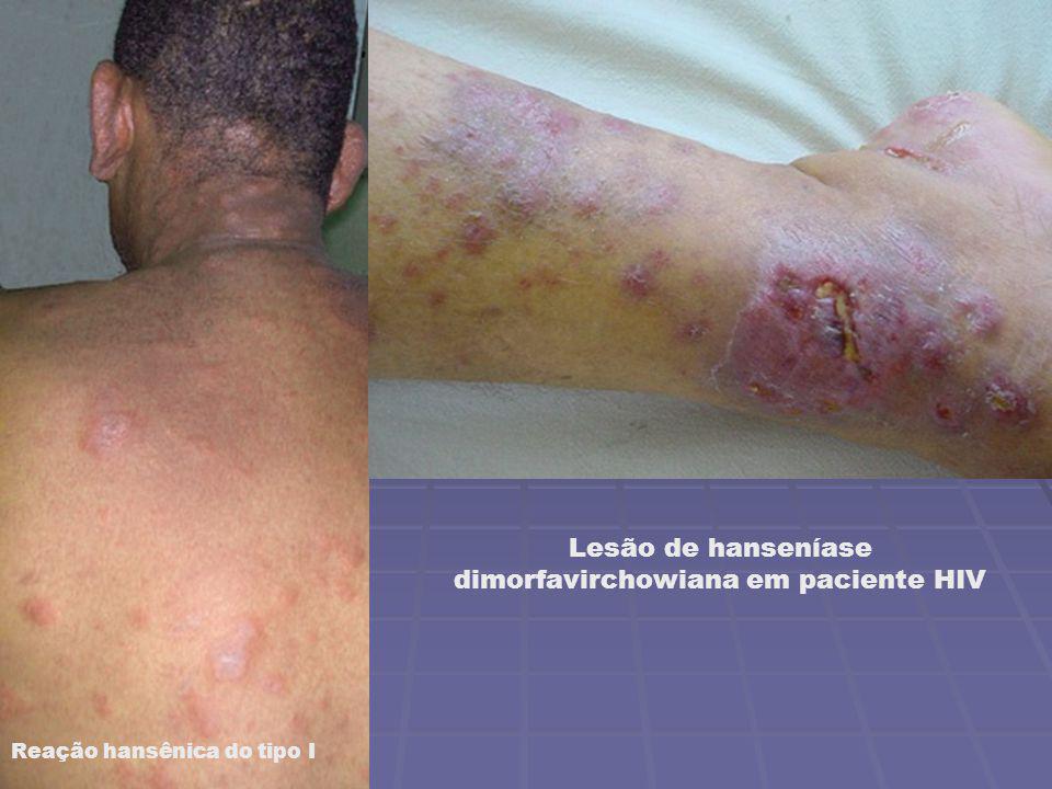 Lesão de hanseníase dimorfavirchowiana em paciente HIV