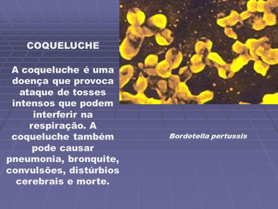 COQUELUCHE