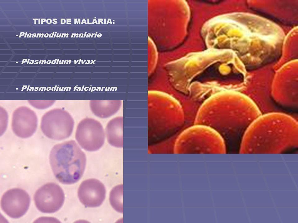 TIPOS DE MALÁRIA: Plasmodium malarie Plasmodium vivax Plasmodium falciparum