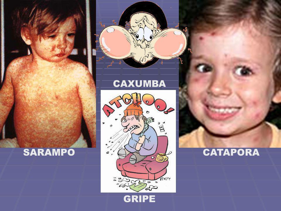 CAXUMBA SARAMPO CATAPORA GRIPE