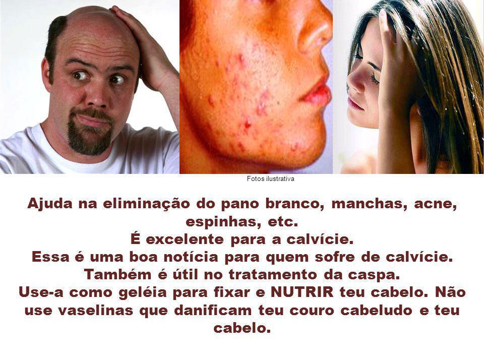 Fotos ilustrativa Ajuda na eliminação do pano branco, manchas, acne, espinhas, etc. É excelente para a calvície.