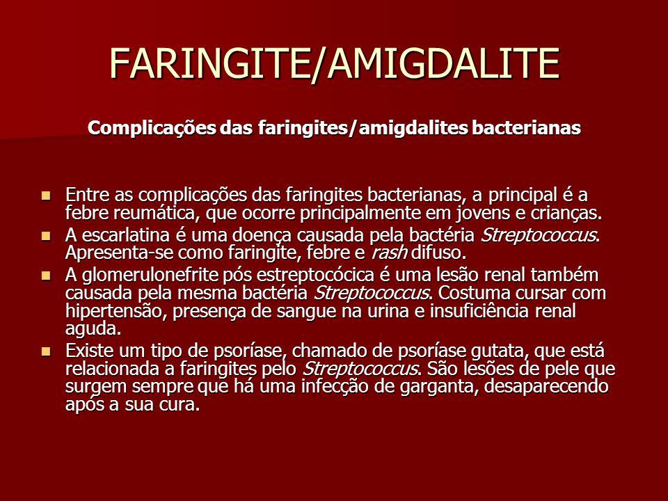 FARINGITE/AMIGDALITE