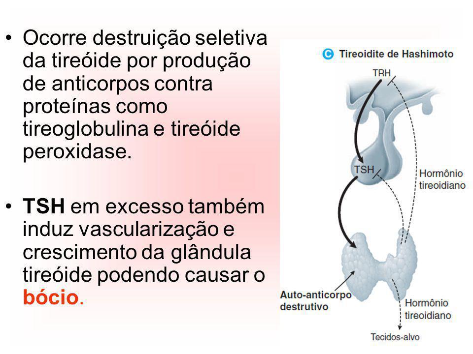 Ocorre destruição seletiva da tireóide por produção de anticorpos contra proteínas como tireoglobulina e tireóide peroxidase.