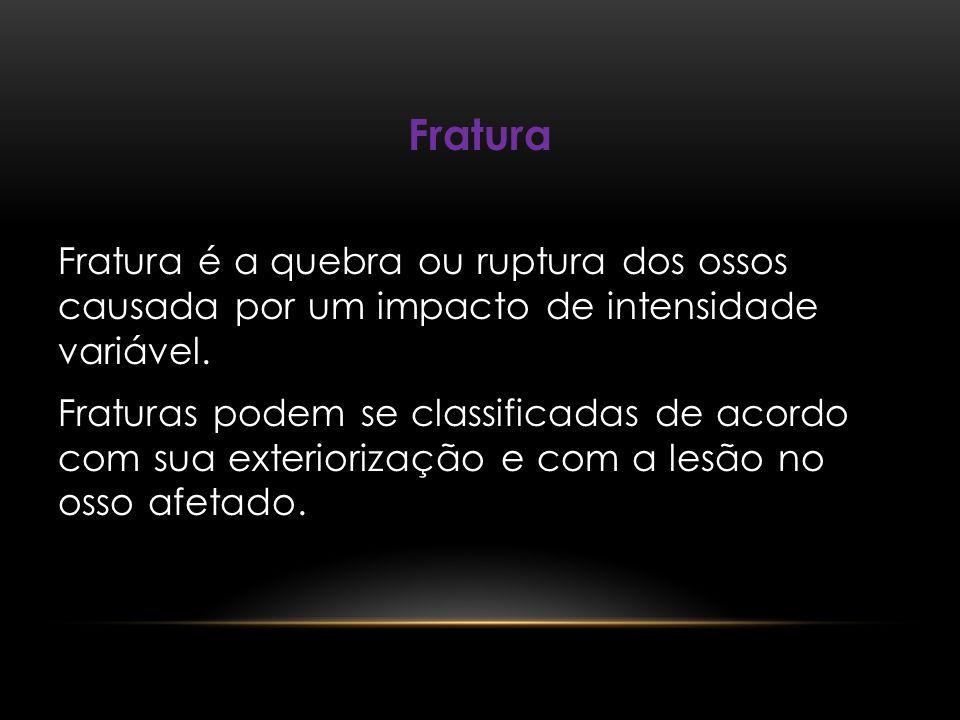 Fratura Fratura é a quebra ou ruptura dos ossos causada por um impacto de intensidade variável.