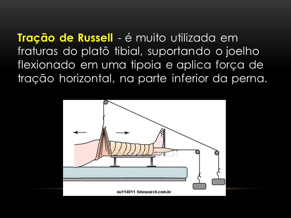 Tração de Russell - é muito utilizada em fraturas do platô tibial, suportando o joelho flexionado em uma tipoia e aplica força de tração horizontal, na parte inferior da perna.