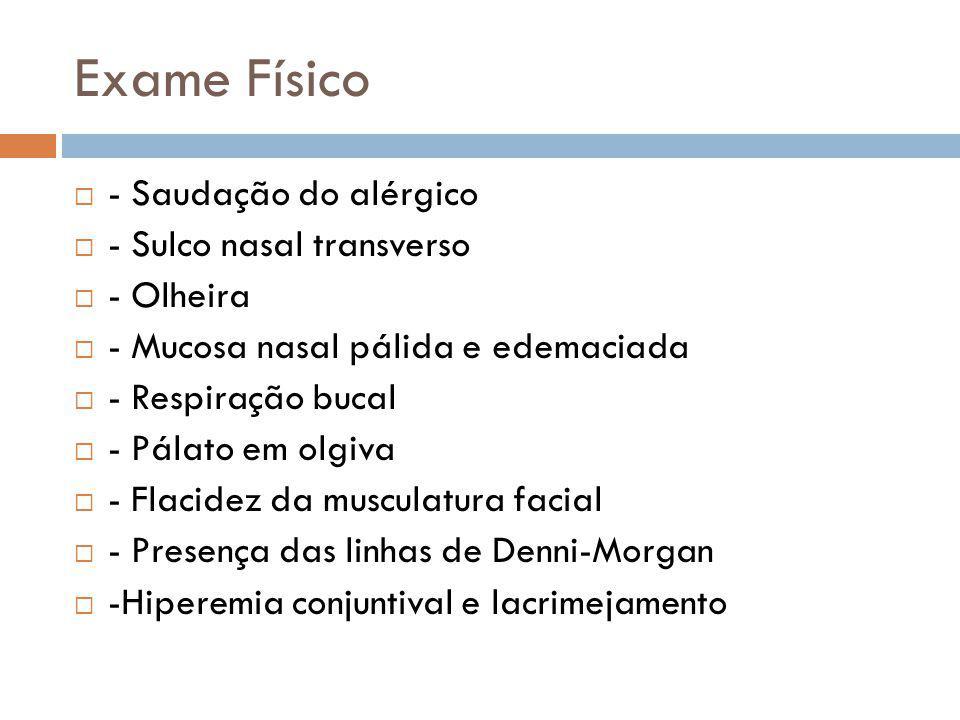 Exame Físico - Saudação do alérgico - Sulco nasal transverso - Olheira