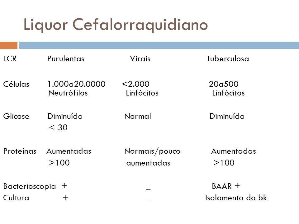 Liquor Cefalorraquidiano