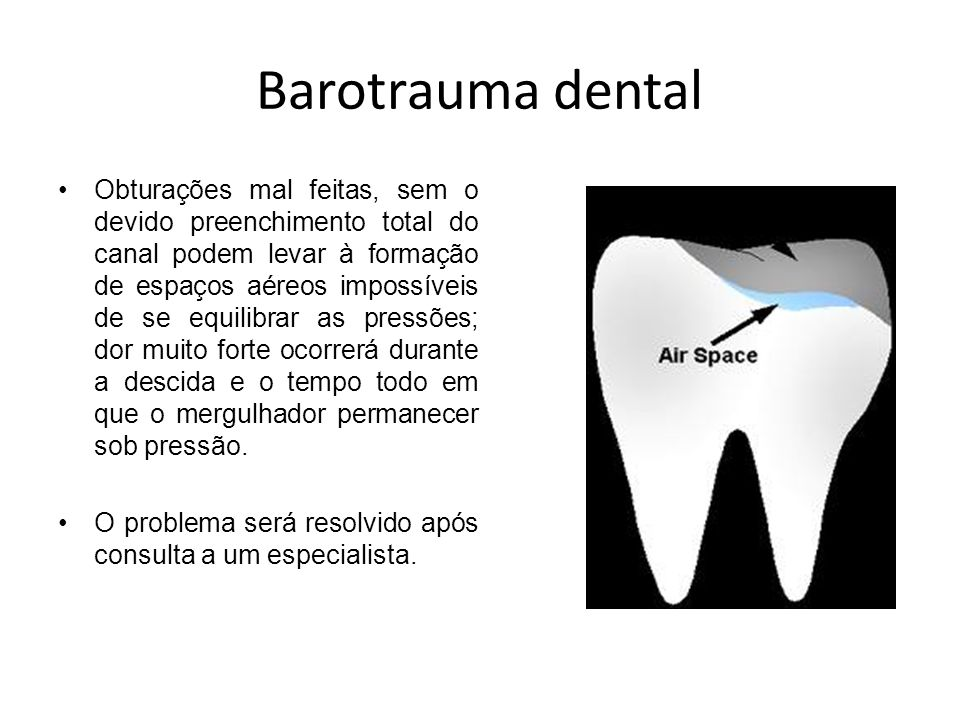 Barotrauma dental