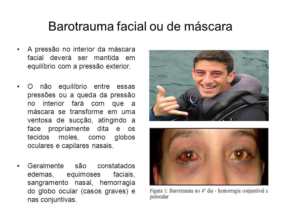 Barotrauma facial ou de máscara