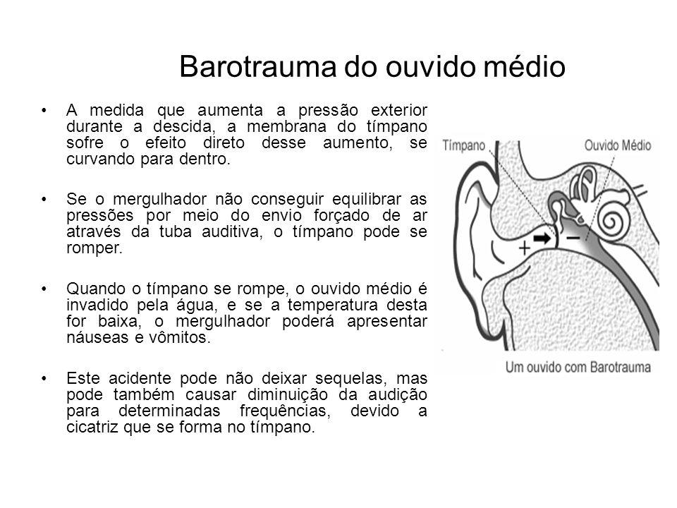Barotrauma do ouvido médio