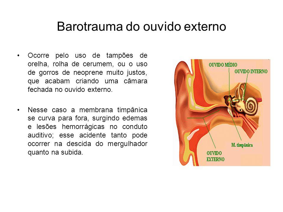 Barotrauma do ouvido externo