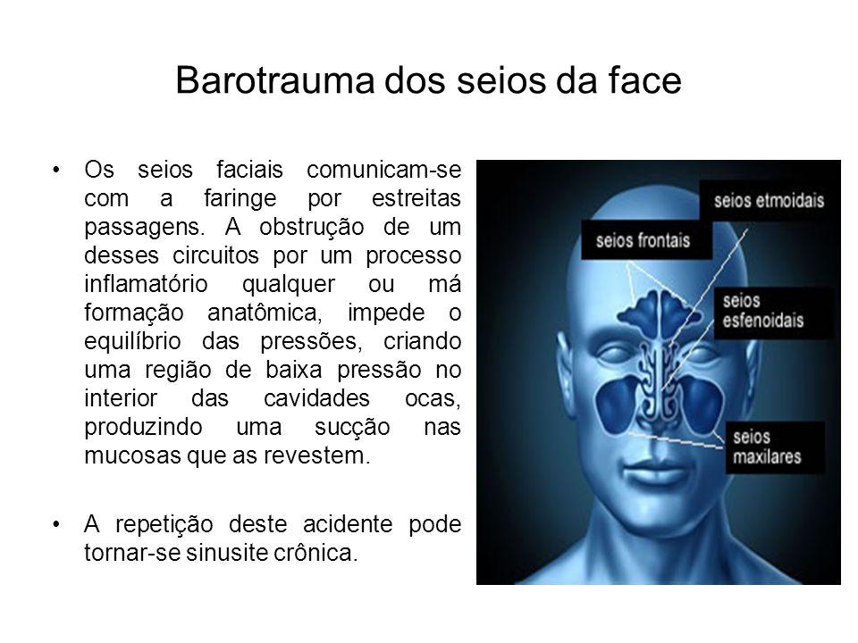 Barotrauma dos seios da face