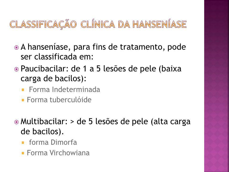 Classificação clínica da hanseníase