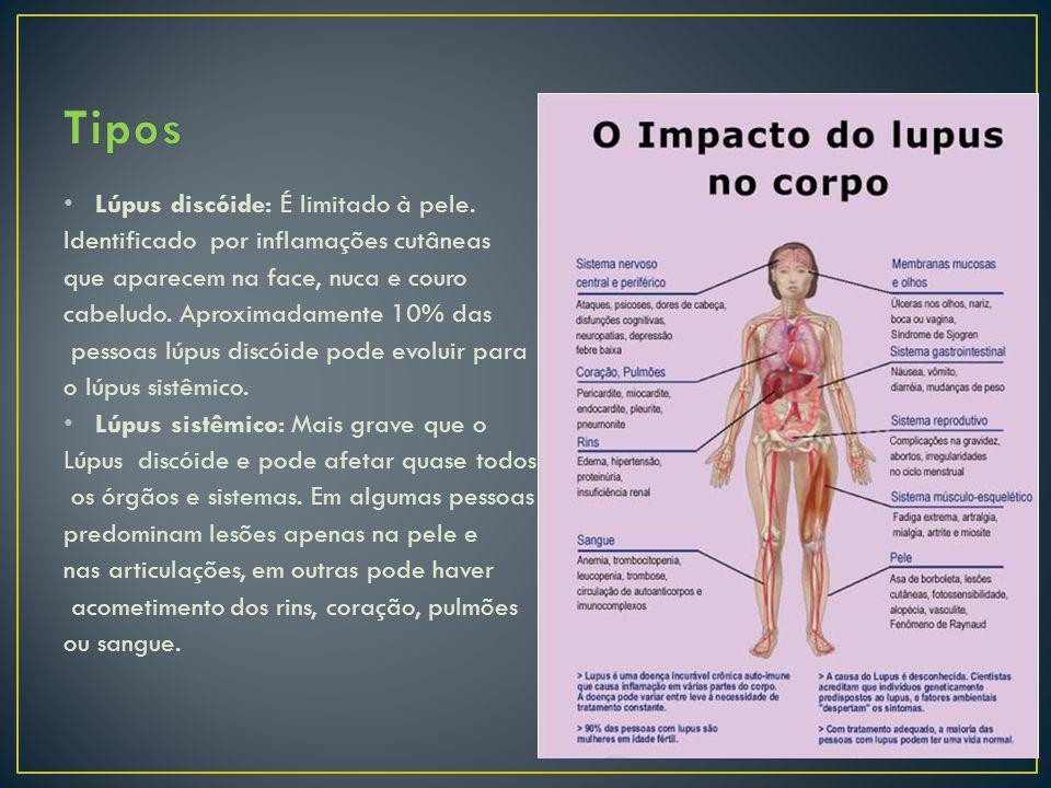 Tipos Lúpus discóide: É limitado à pele.