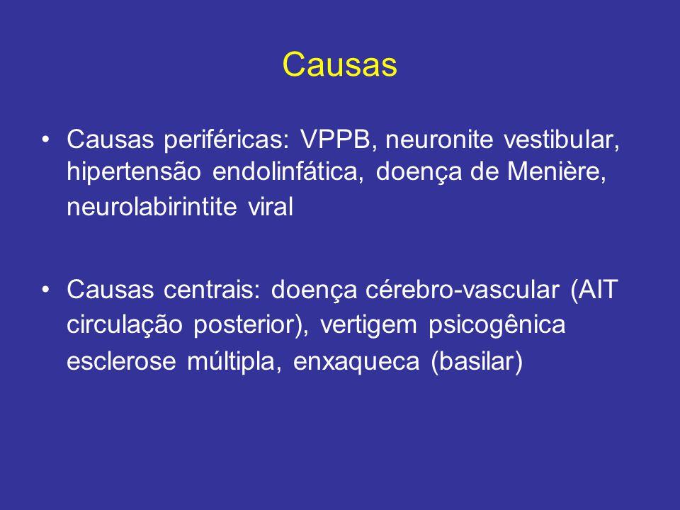 Causas Causas periféricas: VPPB, neuronite vestibular, hipertensão endolinfática, doença de Menière, neurolabirintite viral.