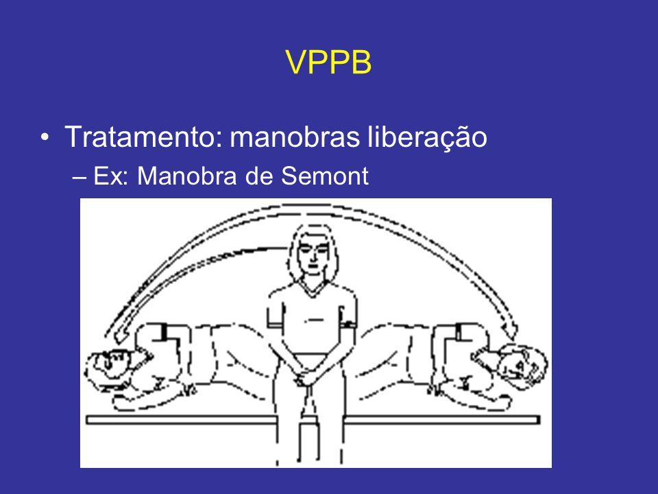 VPPB Tratamento: manobras liberação Ex: Manobra de Semont