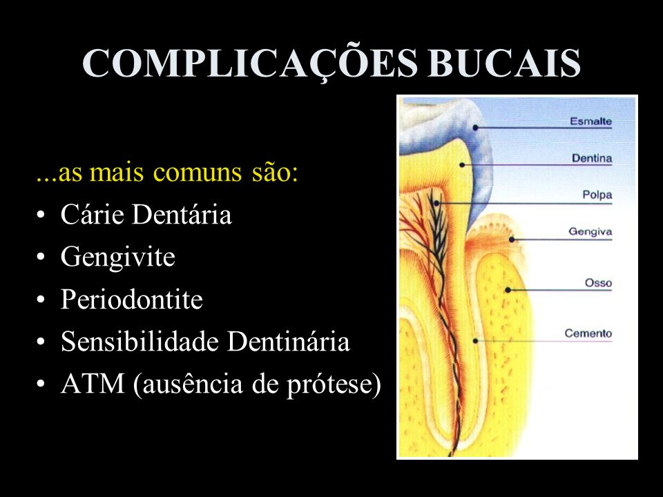 COMPLICAÇÕES BUCAIS ...as mais comuns são: Cárie Dentária Gengivite