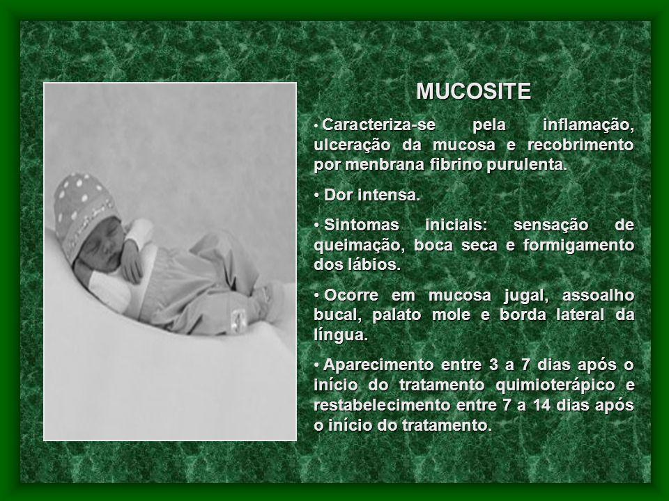MUCOSITE Caracteriza-se pela inflamação, ulceração da mucosa e recobrimento por menbrana fibrino purulenta.