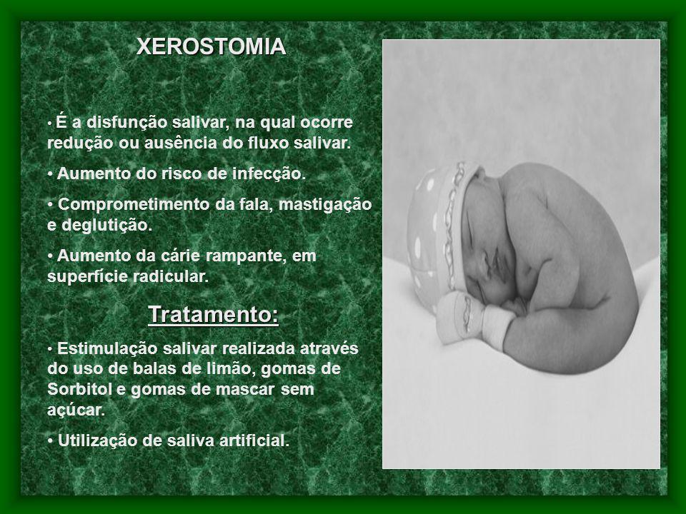 XEROSTOMIA Aumento do risco de infecção.