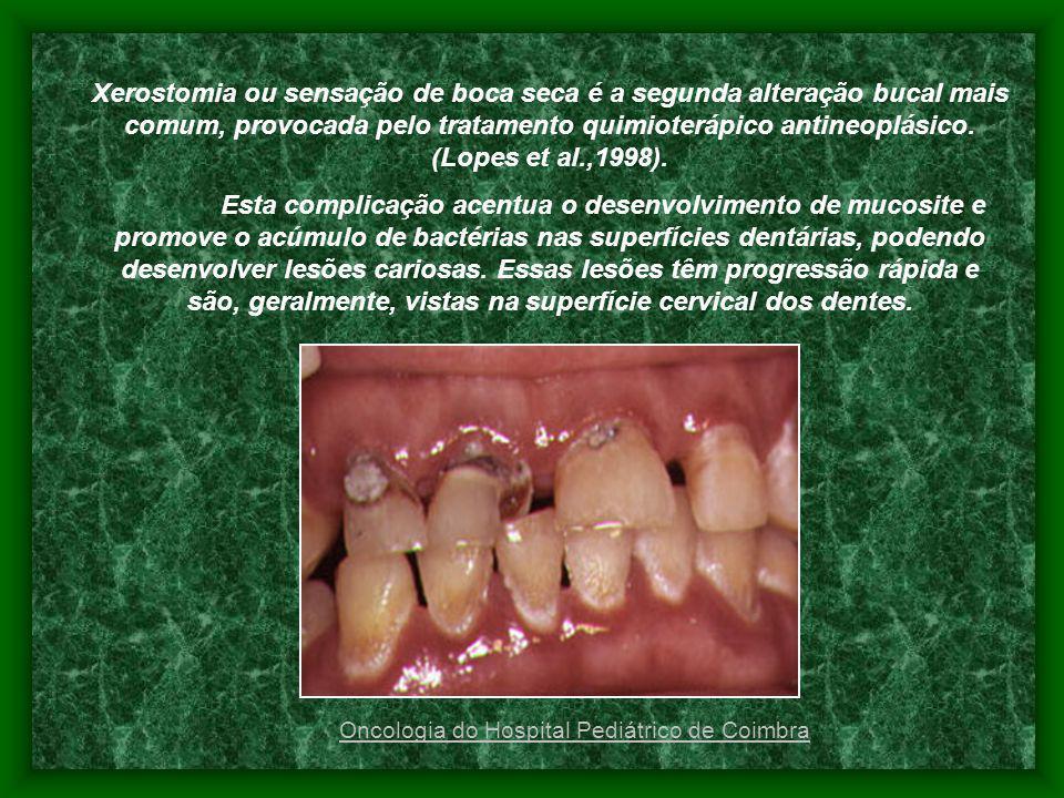 Xerostomia ou sensação de boca seca é a segunda alteração bucal mais comum, provocada pelo tratamento quimioterápico antineoplásico. (Lopes et al.,1998).