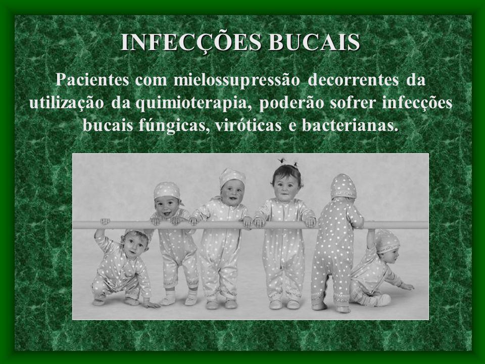 INFECÇÕES BUCAIS