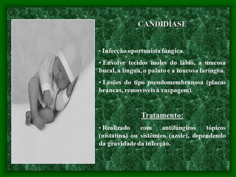 CANDIDÍASE Tratamento: