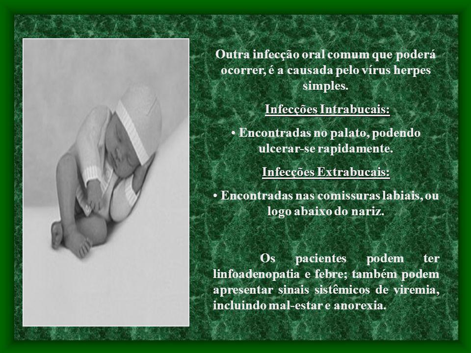 Infecções Intrabucais: