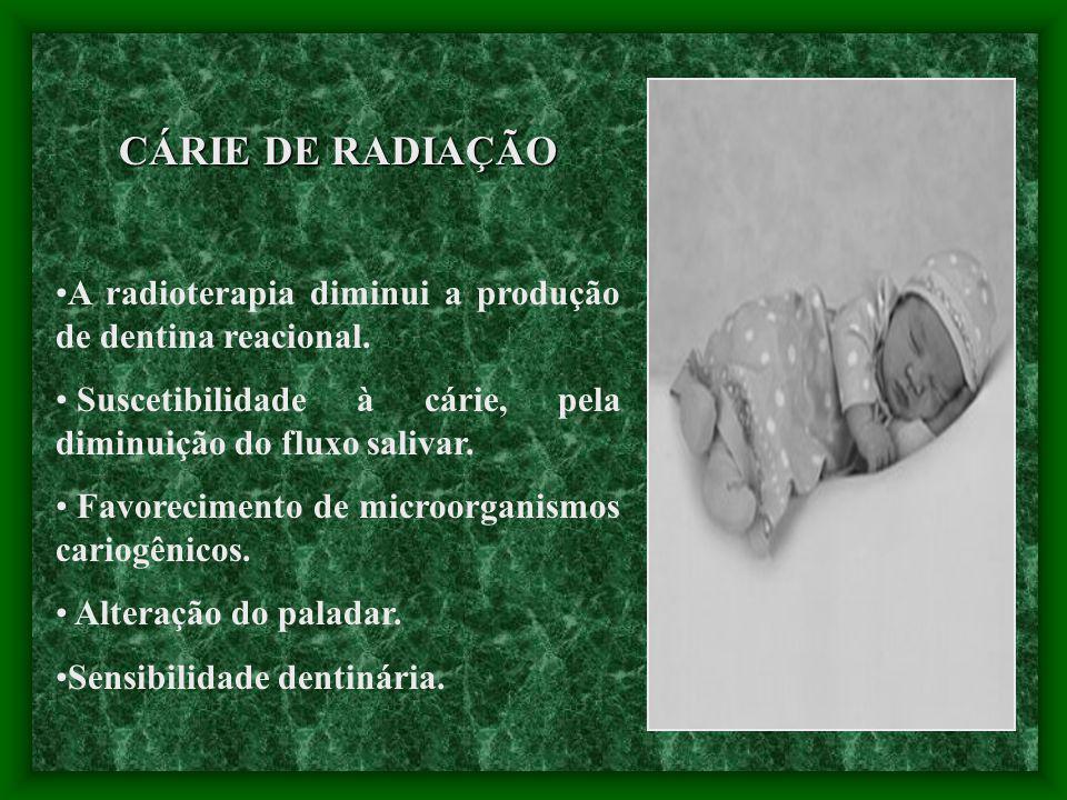 CÁRIE DE RADIAÇÃO A radioterapia diminui a produção de dentina reacional. Suscetibilidade à cárie, pela diminuição do fluxo salivar.