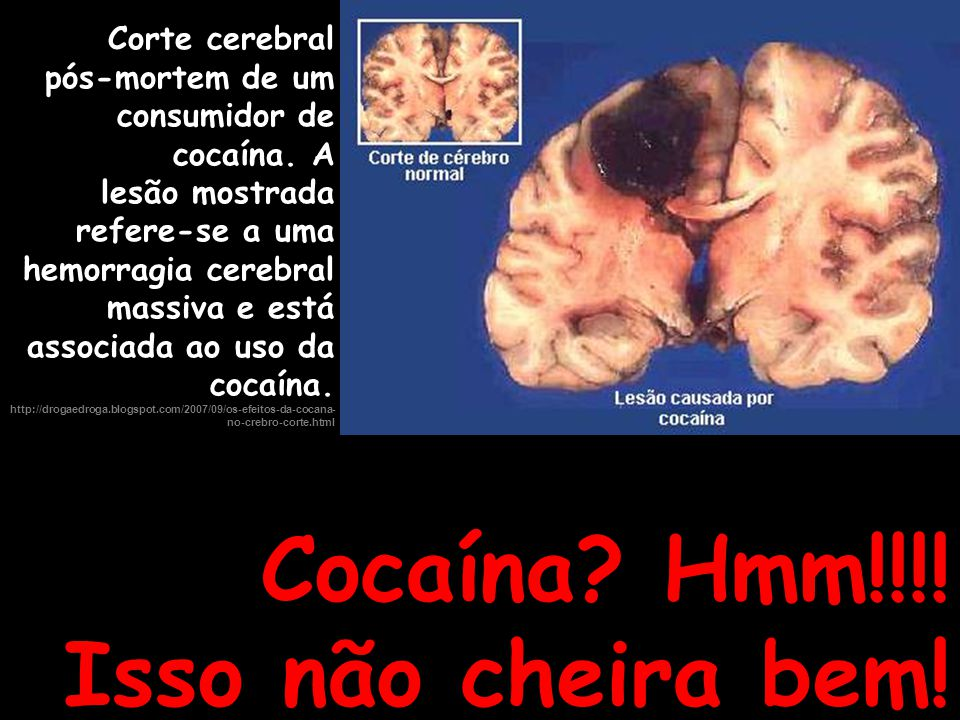 Cocaína Hmm!!!! Isso não cheira bem!