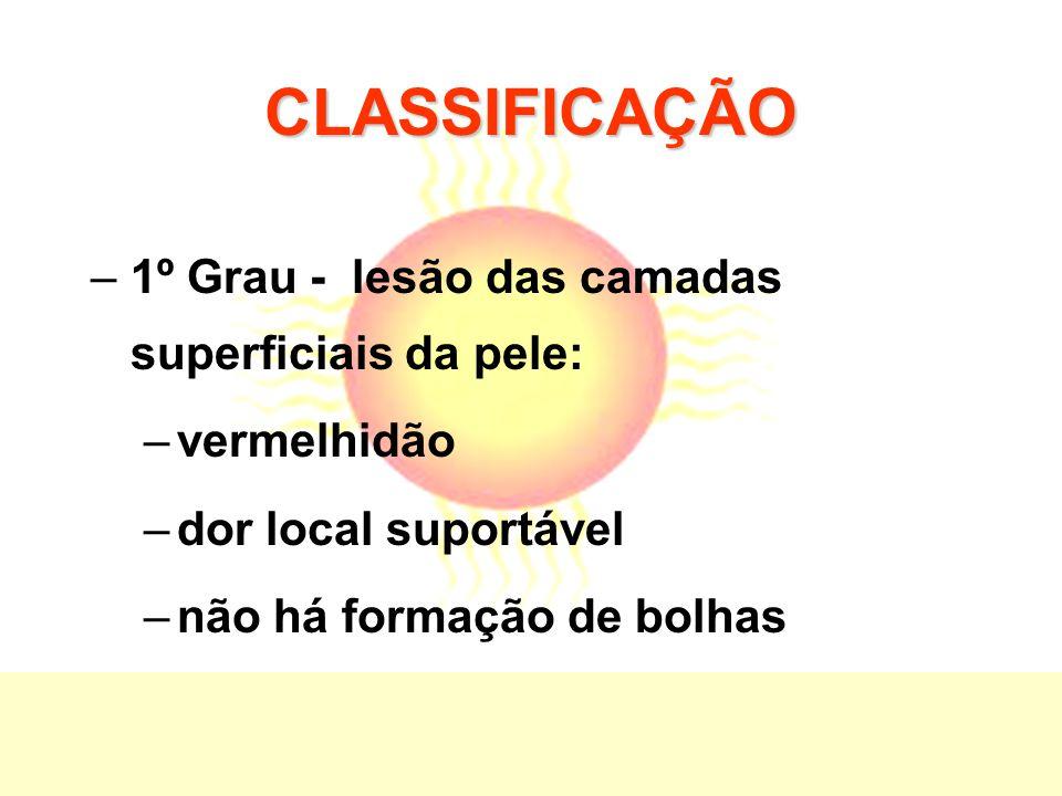 CLASSIFICAÇÃO 1º Grau - lesão das camadas superficiais da pele: