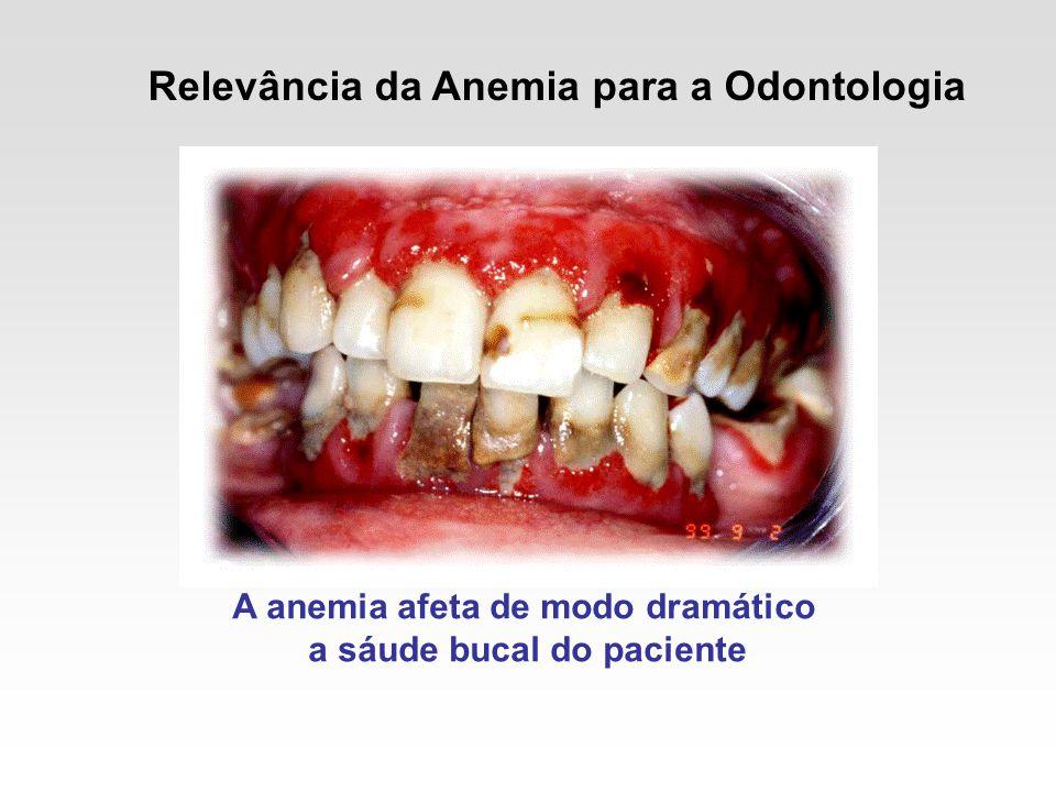 A anemia afeta de modo dramático a sáude bucal do paciente