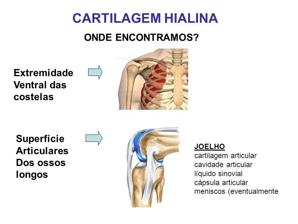 CARTILAGEM HIALINA ONDE ENCONTRAMOS Extremidade Ventral das costelas