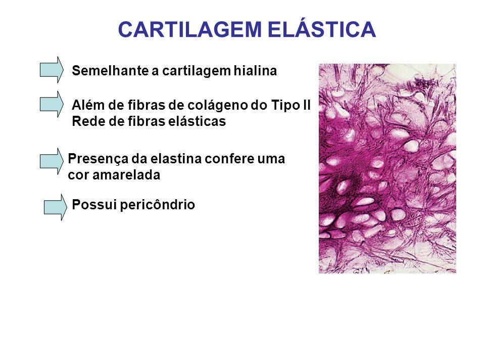 CARTILAGEM ELÁSTICA Semelhante a cartilagem hialina